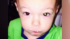 """An Illinois mother says she discovered her son had cancer after taking a picture of him with her camera phone. CNN affiliate <a href=""""http://www.wrex.com/story/28997864/2015/05/06/life-saving-photo-rockford-mom-discovers-her-sons-cancer"""" target=""""_blank"""">WREX reports</a>."""