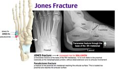 Jones Fracture, Radiology Student, Physical Therapy School, Brain Book, Family Nurse Practitioner, Bone Diseases, Human Anatomy And Physiology, Emergency Medicine, Physician Assistant