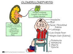 glomerulonephritis symptoms
