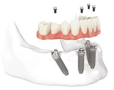 "Same Day Permanent Implant Teeth, known as the ""All On Four"", is the revolutionary solution for those who lost all their teeth, suffering from poor broken teeth or loose fitting dentures."