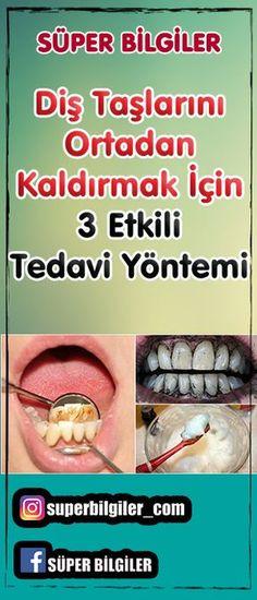 Diş Taşlarını Ortadan Kaldırmak İçin 3 Etkili Tedavi Yöntemi Dişlerinizi düzenli olarak fırçalamanıza rağmen dişlerinizin yüzeyinde pürüzler ve kirler olduğunu fark ediyorsanız, evde uygulayabileceğiniz bu yöntemlerle diş taşlarını ortadan kaldırabilirsiniz.