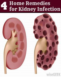 Home Remedies for Kidney Infection | Health Villas