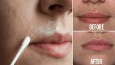 These Simple Homemade Recipes Will Remove All Your Facial Hair for Good