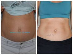 """Correcting Diastasis Recti: """"Posting the article in its entirety in an effort to truly educate our readers about the Tupler Technique® according to Julie Tupler herself. With her permission, I am posting her article below. """""""