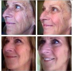 Awesome Nerium Results