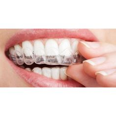 #OrthoSnap #aligners are invisible, comfortable, removable