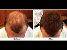 THE MOST EFFECTIVE ANTI BALDNESS TREATMENT AFTER 2 DAYS, YOUR HAIR WILL ... http://wartremovalpro.com/warts-eyes-skin-infection/