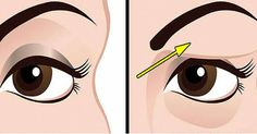 Use Egg White to Treat With Drooping Eyelids!Drooping eyelids can worsen a person's appearance. Loose skin will make it difficult for a person to apply eye makeup. This type of skin tends to make. Droopy Eye Makeup, Droopy Eyes, Hooded Eye Makeup, Hooded Eyes, Makeup Eyes, Saggy Eyelids, Drooping Eyelids, Leiden, Pele Natural