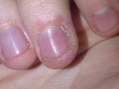 Skin peeling around nails can be caused by many reasons; here are 5 most common causes and their treatments. 5 home remedies can also help the skin peeling. Ingrown Leg Hair, Ingrown Hair Remedies, Ingrown Nail, Dream Catcher Nails, Best Nail Salon, Beauty Tips For Skin, Beauty Ideas, Beauty Hacks, Nail Tutorials