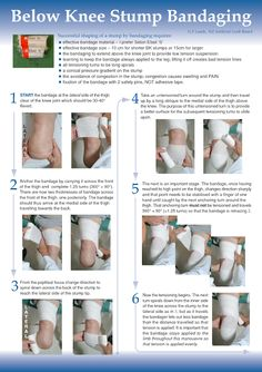 EXCLUSIVE PHYSIOTHERAPY GUIDE FOR PHYSIOTHERAPISTS: STUMP BANDAGING FOR ABOVE AND BELOW KNEE AMPUTATION