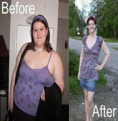 Extreme Before After Weight Loss