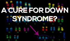 Is There A New Cure For Down Syndrome? John Hopkins Researchers Think So. Check out this link and be sure to leave a comment with your thoughts.
