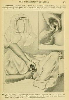 Image from The Practice of Obstetrics, by J. Clifton Edgar, 1910.