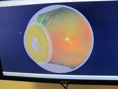 Optomap daytona retinal imaging