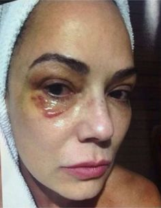 """CHOCANTE, Brunet acusa marido de agressão e o mesmo diz: """"Sou inocente""""! - https://pensabrasil.com/chocante-brunet-acusa-marido-de-agressao-e-o-mesmo-diz-sou-inocente/"""