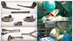 Heal Your Pain and Fractures With External Fixators
