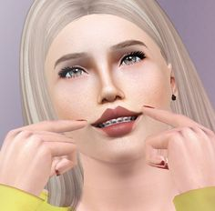 Eris Sims 3 CC Finds (descargassims:   Teeth with braces  Female and...)