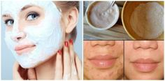 Dark spots and scars are skin issues that make people feel insecure. For that reason, we will show you a completely natural mask that will remove the dark spot and scars from your face. If you have un