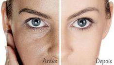 Poros do Rosto - Muitas pessoas apresentam em seu rosto poros muito grandes e para suavizar a aparência destes procuram na químicos que além de não serem