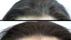 This powerful mixture successfully eliminates white hair. In addition, it is a potent remedy that also improves skin health and vision. In order to prepare it and feel its benefits, you will need: 200 grams of flaxseed oil 3 cloves garlic (small) Grey Hair, White Hair, Black Hair, Smoothie Vert, Hair Remedies, Flat Twist, Sisterlocks, Unwanted Hair, Scene Hair