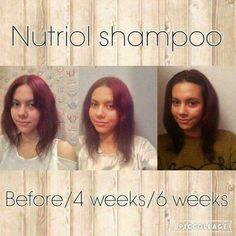Another great result from our Nutriol Hair Shampoo! https://m.facebook.com/BeautySparkles123/