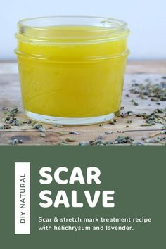 Homemade scar treatment salve with helichrysum and lavender essential oil. This scar salve recipe has moringa, rosehip oil, beeswax and shea butter to fade scars with natural ingredients. This recipe is best for scars on your body or face, even from acne. It fades new and old scars, but old scars will take longer.  Make a DIY salve to fade scars and stretch marks. #salve #diy #scarsalvfadee #helichrysum Salve Recipes, Lip Balm Recipes, Stretch Mark Treatment, Scar Treatment, Natural Beauty Tips, Natural Skin Care, Lotion Recipe, Homemade Lip Balm, Natural Haircare