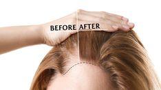 Eyebrow Transplant, Fue Hair Transplant, Types Of Surgery, Hair Clinic, Advanced Hair, Bald Hair, Cool Sculpting, Hair Restoration, About Hair