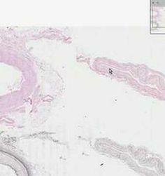 Medium Artery and Vein