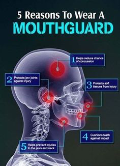 If you play contact sports, a mouth guard helps prevent damage to the teeth and jaw and may even prevent certain types of concussions.
