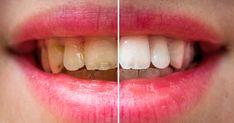 Susamla dişlerinizi bem beyaz yapın Önce susamın yararlarına bakalım daha sonra susam ile nasıl diş beyazlatılır anlatacağız. Asya topraklarında yetiştirilen susam tohum olarak kullanılır. Aynı zamanda susamdan hem yağ hem de baharat elde edilir. Susamın dış Yogurt, Watermelon, Fruit, Health, Aspirin, Dental, Health And Beauty, Teeth, Take Care Of Yourself
