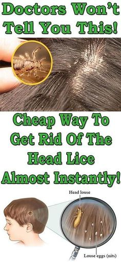 All parents are scared of head lice and most of them fear their child will come and complain that their scalp is itchy.