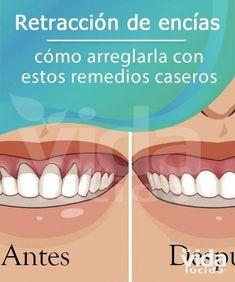 150 Ideas De Retracción De Encías Salud Dental Consejos Para La Salud Salud Bucal