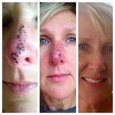 Can I get a WOW for these amazing results?! AGAIN, this is WHY I LOVE Rodan+Fields!!! This lovely lady, Sherri Bowman, a happy R+F customer since March 2015, had a basal cell carcinoma removed from her nose on November 10 (far left pic); stitches were removed 1 week later (middle picture); she returned to using her R+F Redefine regimen within 2 weeks after surgery, and just ONE MONTH post surgery, here is her beautiful face...just 1 month post-surgery!! (far right pic). These products work…