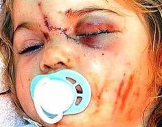 child abuse   WHAT IS CHILD ABUSE •Most children become victims of abuse and neglect at 18 months or younger.