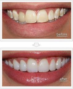 Before and After Pictures: #Teeth- With some cosmetic #dentistry procedures, your teeth can look absolutely stunning. Talk to your dentist to see what can be done.