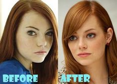 Emma Stone Nose Job Surgery - Celebrity Bra Size, Body Measurements and Plastic Surgery Plastic Surgery Facts, Plastic Surgery Photos, Sharon Stone, Emma Stone, Celebrity Bra Sizes, Celebrities Before And After, Celebrity Plastic Surgery, Rhinoplasty, She Was Beautiful
