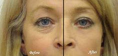 Get Rid of Dark Circles Under Eyes Naturally-
