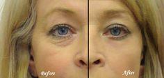 Get Rid of Dark Circles Under Eyes Naturally-