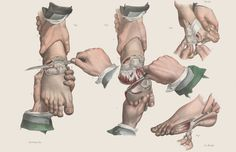 Amputation of various toes.