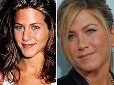 Jennifer-Aniston-Nose-Job.jpg (500×370)