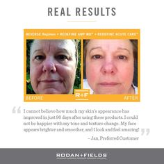 """Love these 90 day results - doesn't happen overnight! Reverse Regimen to """"clean the slate"""" and Redefine to AMP it UP! #RealResults #Skincare #WorkfromHome"""