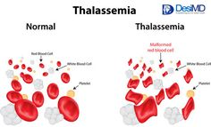 Thalassemia - Blood Disorders - Health Education - DesiMD Healthcare - India