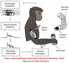 Researchers Create Brain-implanted Electrical Device That Helps To Restore Paralyzed Limbs - After a long spinal cord injury, patients usually damage their connections between brain and spinal cord circuits, which are sensual for any movement. Thanks to scientists at Northwestern University in Chicago, who have developed a Functional Electrical Stimulation (FES) that would create the connections again between brain and spinal cord circuits using only the brain power. In simple word…