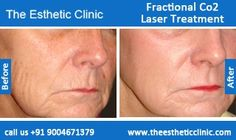 Chemical Peel Treatment, Skin Peel, Skin Peeling Treatment Before After Photos in Mumbai, India Skin Peeling Treatment, Skin Peeling On Face, Skin Specialist Doctor, Fractional Co2 Laser, Skin Resurfacing, Skin Care Clinic, Top Skin Care Products, Chemical Peel