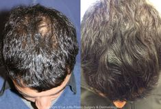 153 Best Hair Restoration San Diego Images In 2020 Hair Restoration Hair Transplant Hair Loss