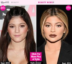 Good news for Kylie Jenner! Juvederm Ultra XC has received FDA approval for lip augmentation, it was announced on October 1 — and it adds fullness to lips for up to one year! Kylie Jenner Plastic Surgery, Celebrity Plastic Surgery, Kylie Jenner Lip Fillers, Beauty News, Beauty Hacks, Botox Lips, Kylie Jenner Pictures, No Photoshop, Hollywood