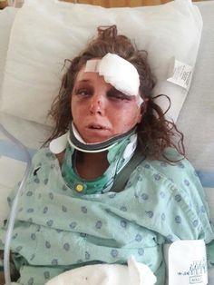 Ex novio la atacó y usó sus dedos para tratar de arrancar su lengua. Las secuelas fueron terribles