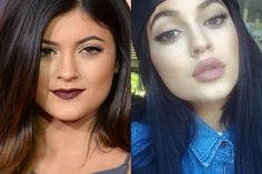 How did Kylie Jenner get her lips like that?