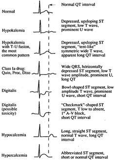 Hypomagnesemia EKG   Various morphologies of ST-T-U abnormalities, as seen in lead V4 :