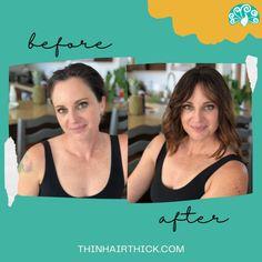Extensions For Thin Hair, Hair Toppers, Hair Breakage, Hair Loss Treatment, Hair Highlights, Fine Hair, Human Hair Wigs, Hair Pieces, Cool Hairstyles